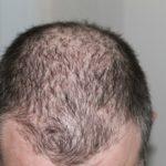 Alopecia Androgenetica: le terapie ufficiali funzionano?