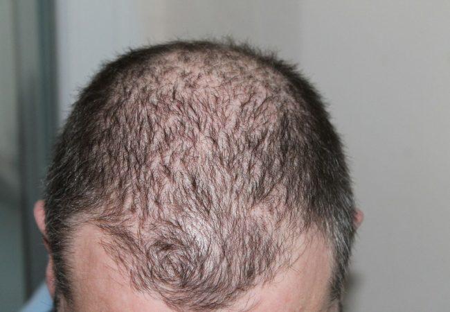 hair-248050_1280_800x533