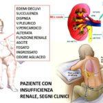 Sintomi, cause e cura dell'insufficienza renale