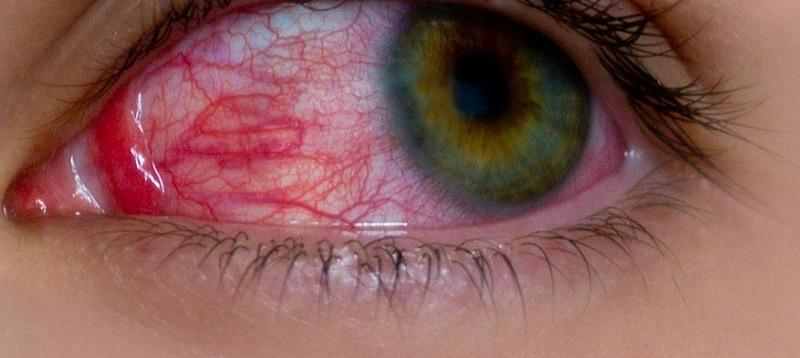 convescenza dopo distacco della retina