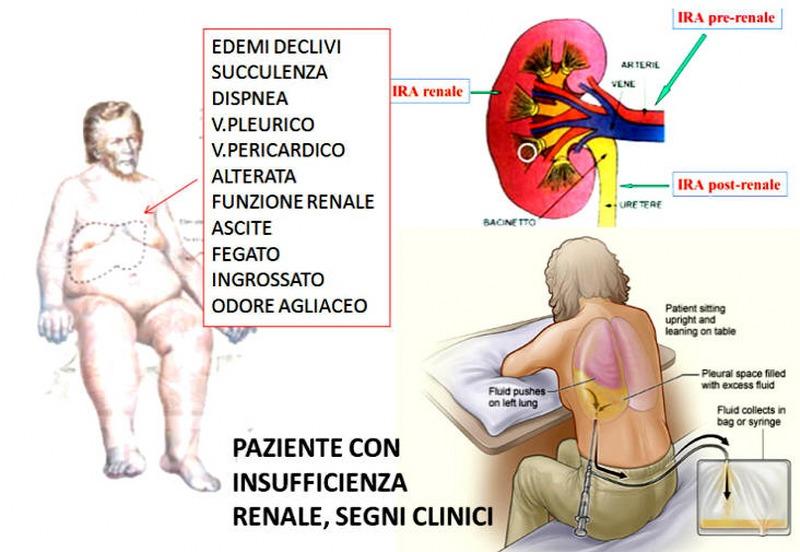 minzione frequente di reni